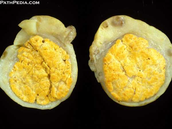 Gross Pathology Images Of Ovary By PathPedia Com